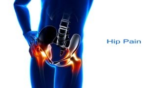Download 5 Steps to Hip Pain Relief Video