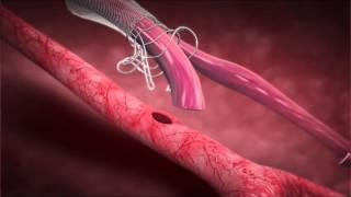 Download Laminate Medical Technologies - VasQ Implantation Procedure Video