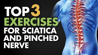 Download Top 3 Exercises for Sciatica and Pinched Nerve Video