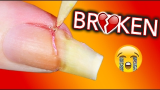 Download MY LIFE IS OVER I AM BROKEN / Fixing my broken nail Video