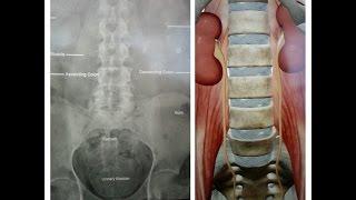 Download X Ray KUB BASICS (Kidney Ureter Bladder) Video
