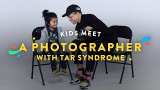 Download Kids Meet a Photographer with Tar Syndrome   Kids Meet   HiHo Video