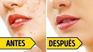 Download Esto te ayudará a deshacerte de las marcas del acné en 4 días Video