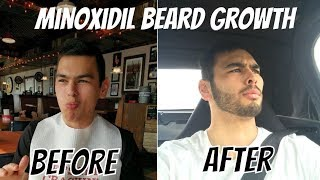 Download My 1-Year Minoxidil Beard Growth Journey and Side Effects (With Before and After) Video