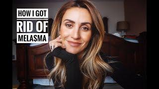 Download How I Got Rid Of Melasma Video