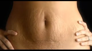 Download How to tighten loose skin after pregnancy Video