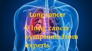 Download 9 lung cancer symptoms from experts Video