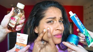Download The Struggles of Having Acne Video