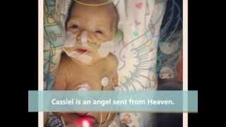 Download 22 Week Miracle Baby Cassiel Video
