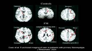 Download ″Fibromyalgia: New Insights, New Hope″ Part 1 Video