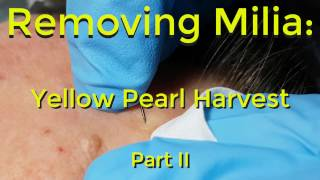 Download Removing Milia: Yellow Pearl Harvest - Part II Video