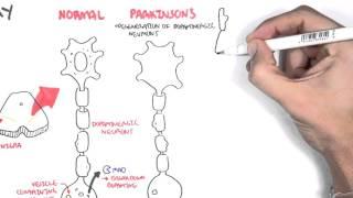Download Pharmacology - Parkinson's Disease Video