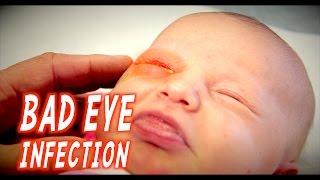 Download BAD EYE INFECTION (Infant) | Dr. Paul Video