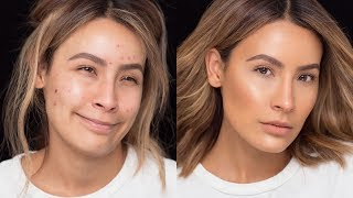 Download FLAWLESS SKIN WITH ACNE BREAKOUTS   DESI PERKINS Video