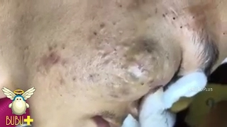 Download Cystic Acne, Pimples And Blackheads Extraction Treatment On Face! Video
