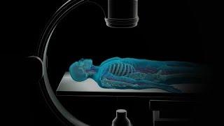 Download Angiografía Coronaria Video