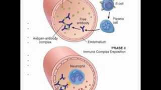 Download Systemic Lupus Erythrematosus (SLE) Video