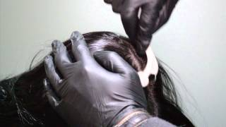 Download Mesotherapy - For Hair Regrowth and Hair Rejuvenation Video