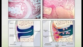 Download Rheumatoid Arthritis and Systemic Lupus Erythematosus Webinar Video