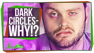 Download Why Do I Get Dark Circles Under My Eyes? Video