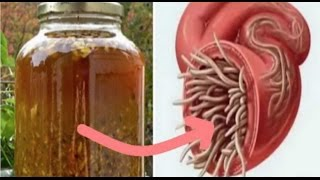 Download Cure All Infections And Kill All Parasites With This DIY Antibiotic Video