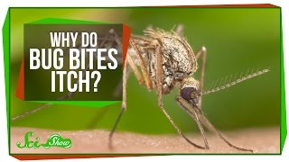 Download Why Do Bug Bites Itch? Video