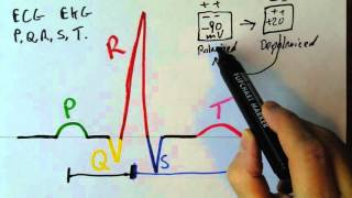 Download P,Q,R,S,T waves in the EKG Video