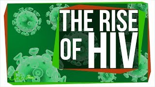 Download How a Sick Chimp Led to a Global Pandemic: The Rise of HIV Video