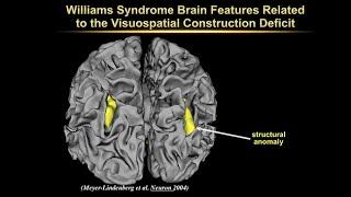 Download Extraordinary Variations of the Human Mind:Karen Berman:Neurogenetic Mechanisms in Williams Syndrome Video