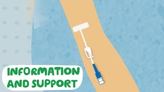 Download Having your PICC line put in - Macmillan Cancer Support Video