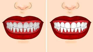 Download 15 TIPS AND TRICKS FOR TEETH EVERYONE SHOULD KNOW Video