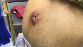 Download Reinfected Sebaceous Cyst Dressed & Irrigated - Day 51 Post Lancing Video