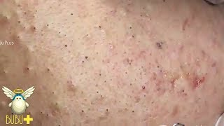 Download Blackheads, Cystic Acne And Pimples Extraction On Face Acne Treatment 172531! Video