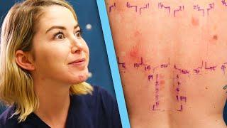 Download Women Get Makeup Allergy Tests Video