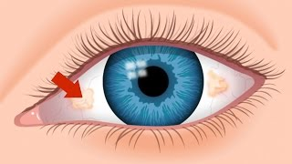 Download Ugly Yellow Spots - Tampa FL Eye Doctor 813-632-2020 Video