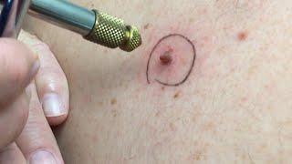 Download Liquid Nitrogen Cryotherapy on Howard's Moles! Video