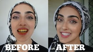 Download How To WHITEN Yellow Teeth NATURALLY & INSTANTLY AT HOME in 2 MINS | 100% Effective | OIL PULLING Video