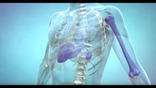 Download What is Gaucher Disease? Video