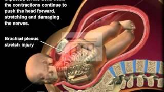 Download Shoulder Dystocia Medical Animation Video