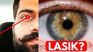 Download LASIK Eye Surgery - LASERs for Eyes Explained Video