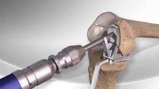 Download Partial Knee Replacement with the Arthrex® iBalance® UKA Video