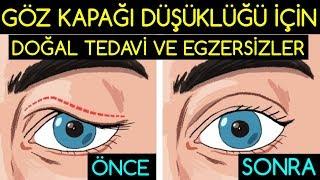 Download Göz Kapağı Düşüklüğü İçin Doğal Tedavi ve Egzersizler Video