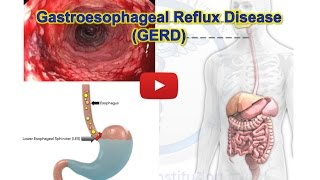 Download GERD, Gastroesophageal reflux disease - Heartburn - MADE EASY Video