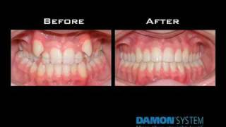 Download Damon System Braces Brief Overview .mp4 Video