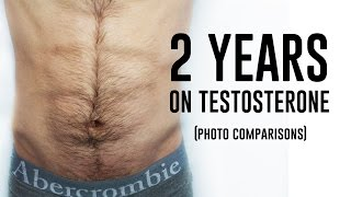 Download Female to Male Transgender - 2 Years on Testosterone (Photo Comparison) Video