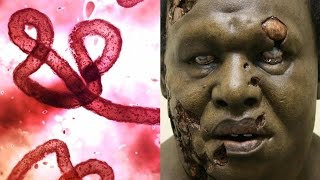Download 10 Diseases That Could Wipe Out Humanity Video