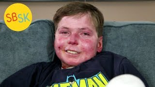 Download Living in a Body of Open Wounds with Less than Half His Skin (Epidermolysis Bullosa) Video
