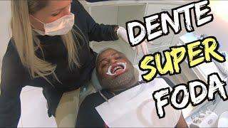 Download DENTES SUPER FODA Video