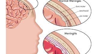 Download Meningitis Video