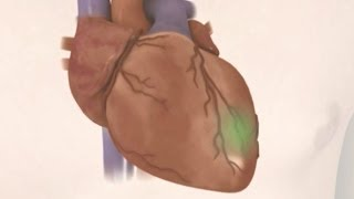 Download Preventing coronary heart disease Video